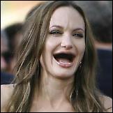 Holivudske ljepotice bez zuba