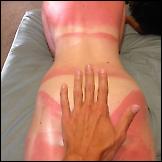 Oprez na suncu